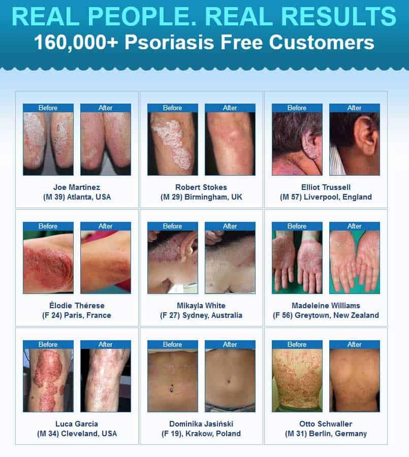 Dan Crawford Psoriasis Revolution